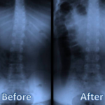 Why Parents Making Their Pediatric Chiropractor a Staple in Their Child's Healthcare